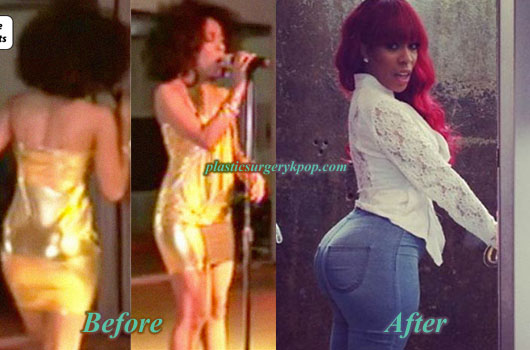 KMichelleButtImplants K Michelle Plastic Surgery Before and After Butt Implants Pictures