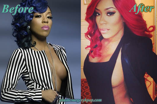 KMichellePlasticSurgery K Michelle Plastic Surgery Before and After Butt Implants Pictures