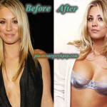 Kaley Cuoco Plastic Surgery Boob Job Before After Picture