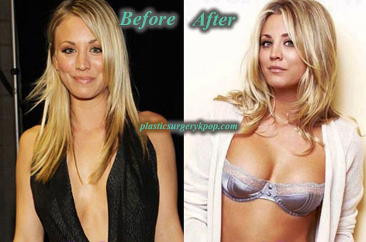 KaleyCuocoPlasticSurgeryBoobJob Kaley Cuoco Plastic Surgery Boob Job Before After Picture
