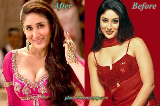 KareenaKapoorBreastImplants Kareena Kapoor Plastic Surgery Before After Photos