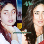 Kareena Kapoor Plastic Surgery Before After Photos
