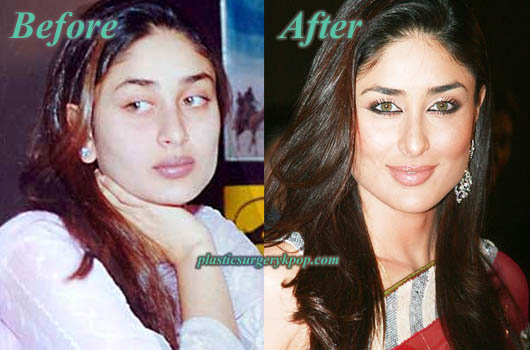 KareenaKapoorPlasticSurgery Kareena Kapoor Plastic Surgery Before After Photos