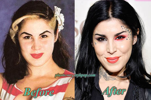 KatVonDPlasticSurgery Kat Von D Plastic Surgery Before and After Pictures