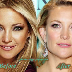 Kate Hudson Plastic Surgery Boob Job, Nose Job Before After Pictures