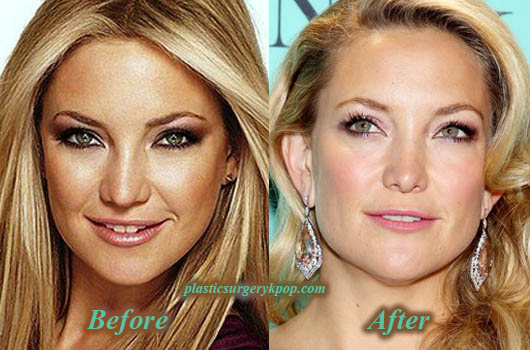 KateHudsonPlasticSurgery Kate Hudson Plastic Surgery Boob Job, Nose Job Before After Pictures
