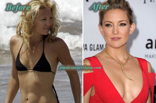 KateHudsonPlasticSurgeryBoobJob Kate Hudson Plastic Surgery Boob Job, Nose Job Before After Pictures