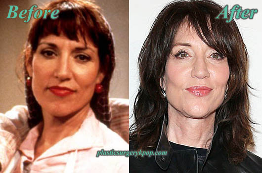 KateySagalFacelift Katey Sagal Plastic Surgery Facelift, Botox Before and After Pictures