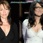 Katey Sagal Plastic Surgery Facelift, Botox Before and After Pictures
