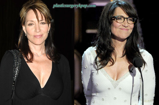 KateySagalPlasticSurgery Katey Sagal Plastic Surgery Facelift, Botox Before and After Pictures