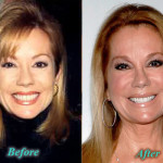 Kathie Lee Gifford Plastic Surgery Botox Before After