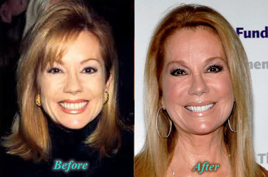 KathieLeeGiffordPlasticSurgery Kathie Lee Gifford Plastic Surgery Botox Before After