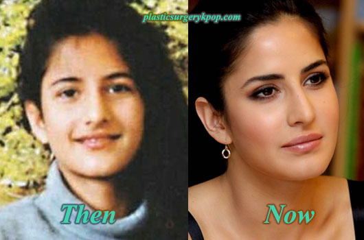 KatrinaKaifNoseJob Katrina Kaif Plastic Surgery Before and After Nose Job, Botox Pictures