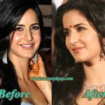 Katrina Kaif Plastic Surgery Before and After Nose Job, Botox Pictures