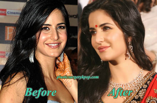 KatrinaKaifPlasticSurgery Katrina Kaif Plastic Surgery Before and After Nose Job, Botox Pictures