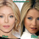 Kelly Ripa Plastic Surgery Before After Pictures