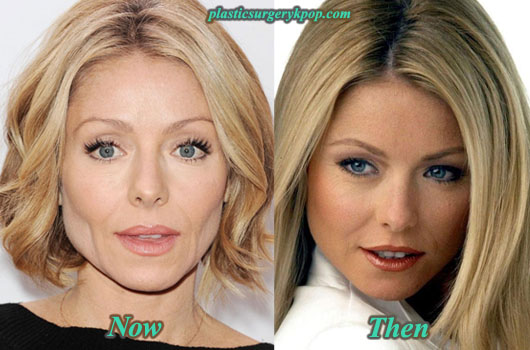 KellyRipaPlasticSurgery Kelly Ripa Plastic Surgery Before After Pictures