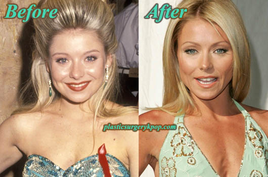 KellyRipaPlasticSurgeryPicture Kelly Ripa Plastic Surgery Before After Pictures