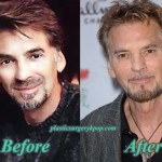 Kenny Loggins Plastic Surgery Before After Pictures