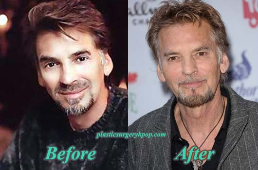 KennyLogginsPlasticSurgery Kenny Loggins Plastic Surgery Before After Pictures