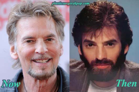 KennyLogginsPlasticSurgeryPicture Kenny Loggins Plastic Surgery Before After Pictures