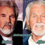 Kenny Rogers Plastic Surgery of Facelift Before and After Picture