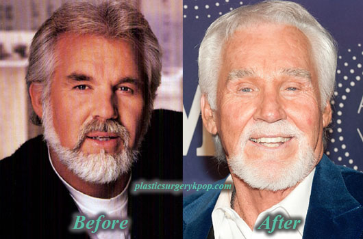 KennyRogersPlasticSurgery Kenny Rogers Plastic Surgery of Facelift Before and After Picture