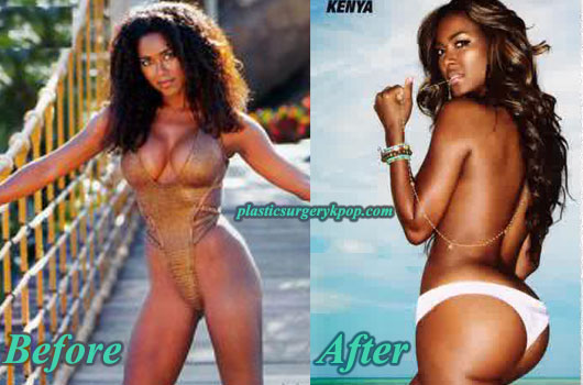 KenyaMoorePlasticSurgery Kenya Moore Plastic Surgery Before and After Picture