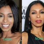 Khandi Alexander Plastic Surgery 150x150 Khandi Alexander Plastic Surgery Before and After