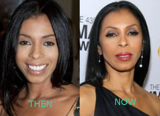 Khandi Alexander Plastic Surgery Khandi Alexander Plastic Surgery Before and After