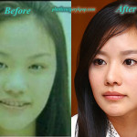 Kim Ah Joong Plastic Surgery Before and After Pictures