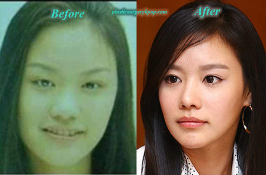 KimAhJoongPlasticSurgery Kim Ah Joong Plastic Surgery Before and After Pictures