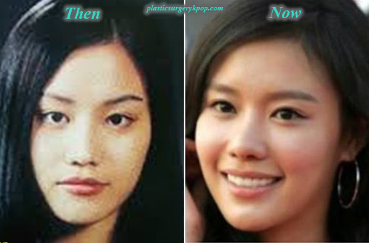 KimAhJoongPlasticSurgeryBeforeAfter Kim Ah Joong Plastic Surgery Before and After Pictures