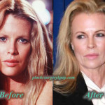 Kim Basinger Plastic Surgery Facelift Botox Before and After Picture
