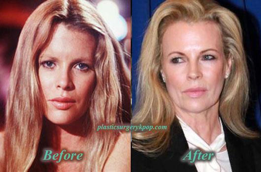 KimBasingerPlasticSurgery Kim Basinger Plastic Surgery Facelift Botox Before and After Picture