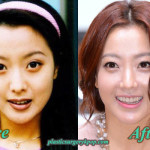 Did Kim Hee Sun Have Plastic Surgery? Before and After Pictures