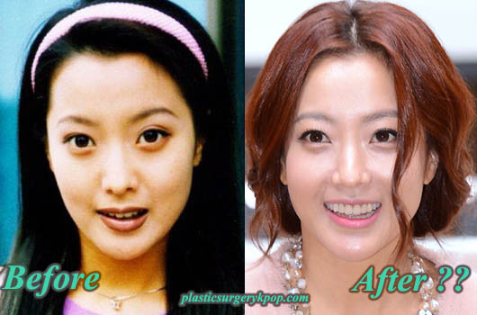KimHeeSunplasticsurgery Did Kim Hee Sun Have Plastic Surgery? Before and After Pictures