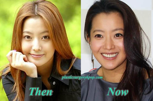 KimHeeSunplasticsurgeryPicture Did Kim Hee Sun Have Plastic Surgery? Before and After Pictures
