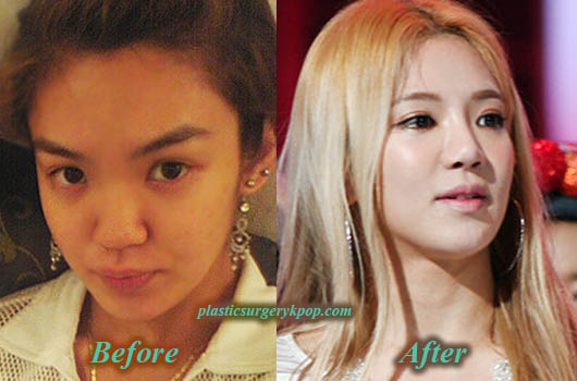 KimHyoyeonBeforeAfter Kim Hyoyeon SNSD/Girl's Generation Plastic Surgery Before and After