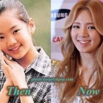 Kim Hyoyeon SNSD/Girl's Generation Plastic Surgery Before and After