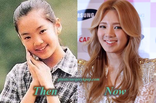Kim Hyoyeon Snsd Girl S Generation Plastic Surgery Before And After