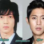 Kim Hyun Joong Plastic Surgery of Nose Job Before After Pictures
