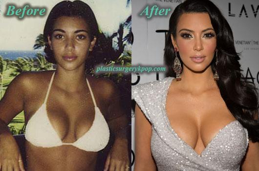 KimKardashianPlasticSurgery Kim Kardashian Plastic Surgery Before After Pictures