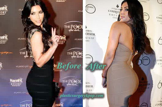 KimKardashianPlasticSurgeryButtImplants Kim Kardashian Plastic Surgery Before After Pictures