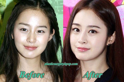 KimTaeHeeEyelidSurgeryNoseJob Kim Tae Hee Plastic Surgery Pictures Before and After