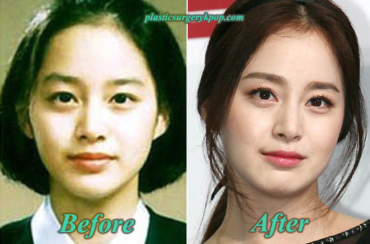 KimTaeHeePlasticSurgery Kim Tae Hee Plastic Surgery Pictures Before and After
