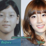 Kim Taeyeon SNSD/Girl's Generation Plastic Surgery Before and After
