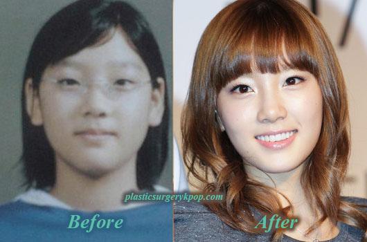 KimTaeyeonPlasticSurgery Kim Taeyeon SNSD/Girl's Generation Plastic Surgery Before and After