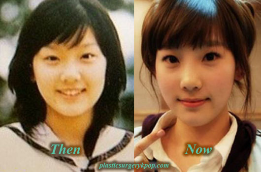KimTaeyeonPlasticSurgeryBeforeAfter Kim Taeyeon SNSD/Girl's Generation Plastic Surgery Before and After