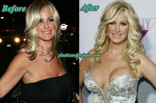 KimZolciakBreastImplants Kim Zolciak Plastic Surgery Before and After Pictures